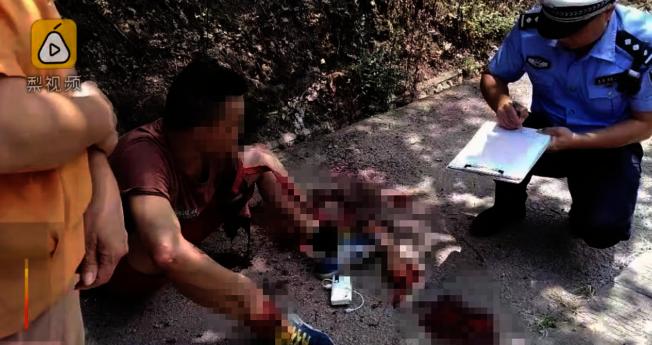 中國一名男子日前走在路上突然遭到車子撞飛手臂,不料他竟然淡定的將自己手臂撿回,還安靜的坐在地上等待救援。(梨視頻截圖)