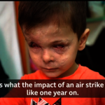 戰火悲歌 敘利亞4歲童毀容失明