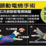 台灣醫療奇蹟/心房顫動電燒術 引領全球