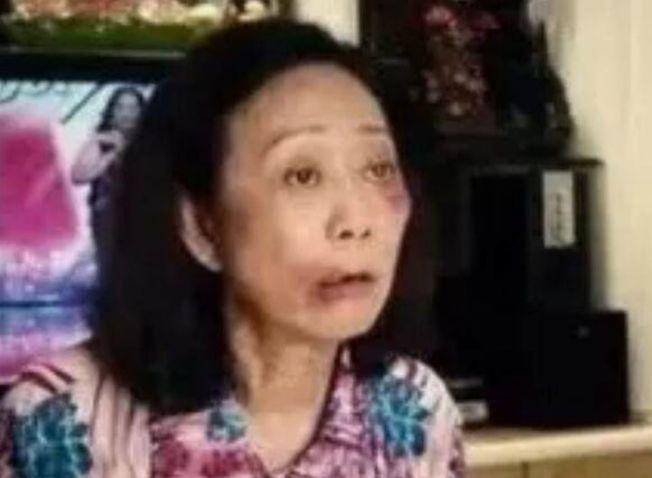 被兒媳打了兩耳光的婆婆滿面愁容。(取材自揚子晚報)