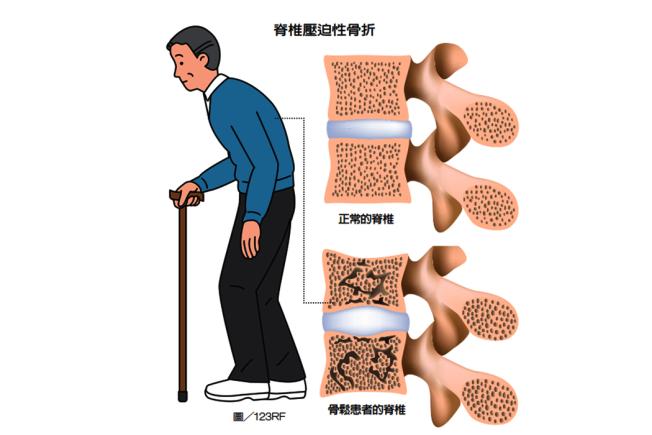 若有骨質疏鬆狀況 醫師:單靠飲食補鈣的方式太慢