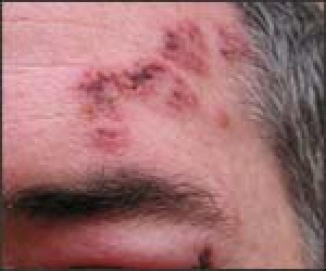 帶狀疱疹是一種病毒性疾病,疾病特徵是局部出現強烈疼痛的群聚皮膚水疱。(CDC)