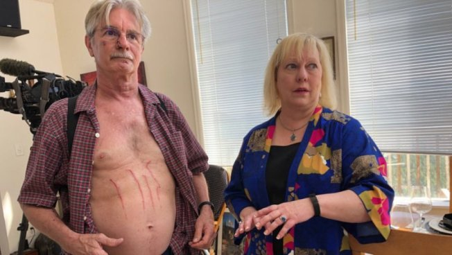 科羅拉多州71歲居民強生(左)26日晚間赫然發現家裡有一隻母熊帶著小熊闖入,他與妻子遭到熊襲時以球棒回擊,保住性命。圖為強生身上留下數道被黑熊抓傷的疤痕。(q13fox新聞電視台截圖)