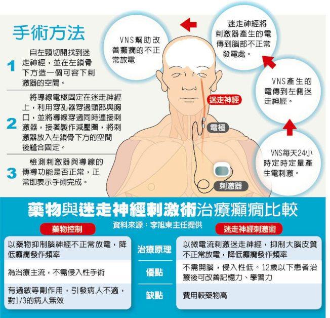 台灣醫療奇蹟/刺激迷走神經 「控電」治癲癇
