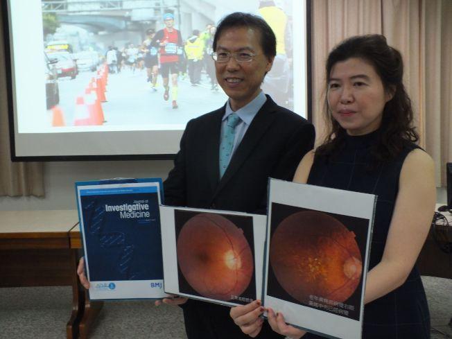 台灣的中國附醫近視及眼睛疾病中心主任卓夙航(左)及副主任梁中玲(右)公布研究結果,發現空汙物一氧化碳、二氧化氮,會明顯增加老年性黃斑部病變。(趙容萱/攝影)