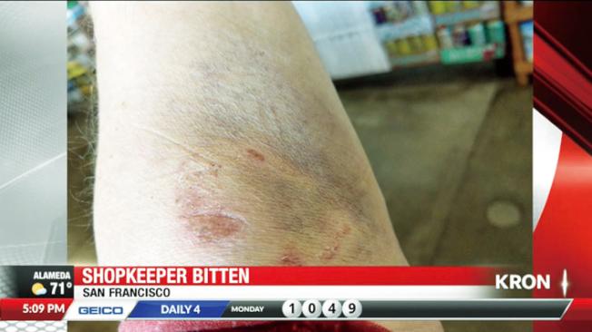 舊金山便利商店東主德索尼爾斯四個月內兩度被遊民咬傷。(電視新聞截圖)