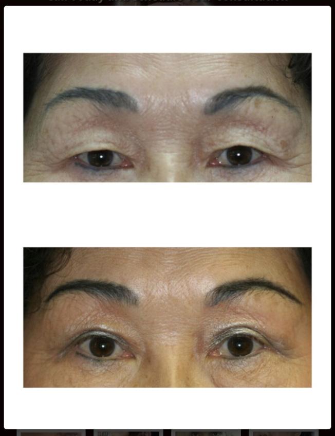 華人要割雙眼皮,有的要漂亮,有的防止被誤解為睡覺。(圖:Wilbur夏提供)