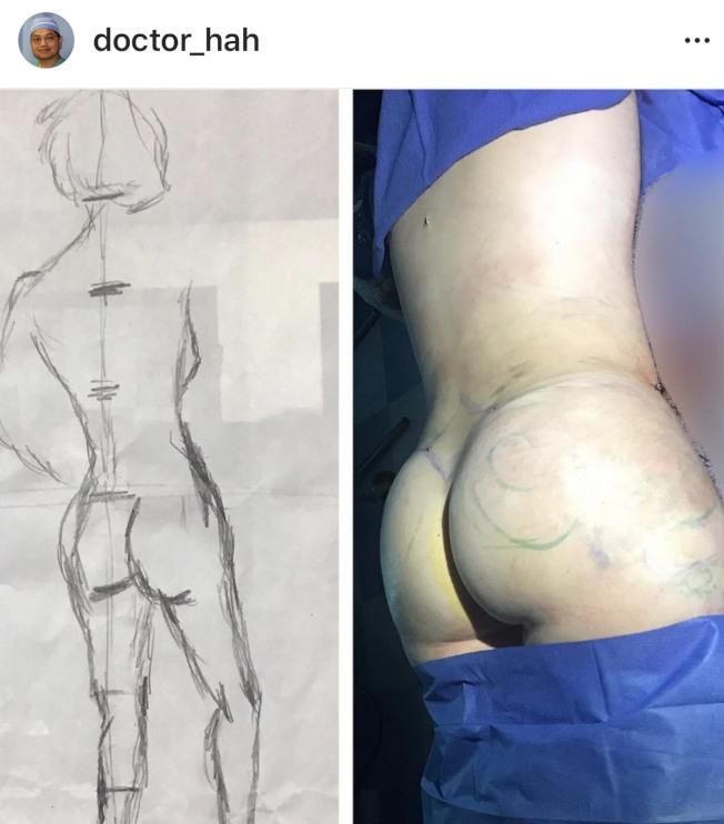 許多女性要求做巴西提臀手術。(圖:Wilbur夏提供)
