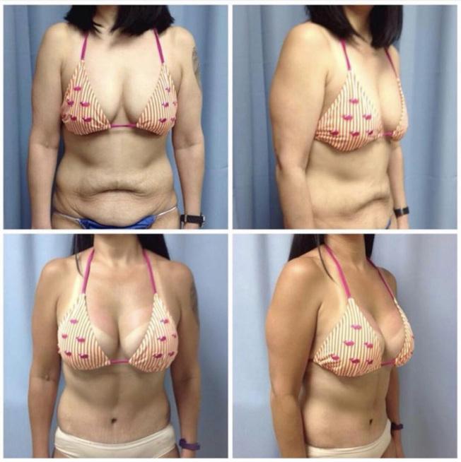 Wilbur洪表示,目前美國最受歡迎的整容手術是「隆胸」。上圖為術前,下圖為術後。(圖:Wilbur夏)