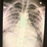 抽電子菸2年 美青年肺如「70歲」差點死掉