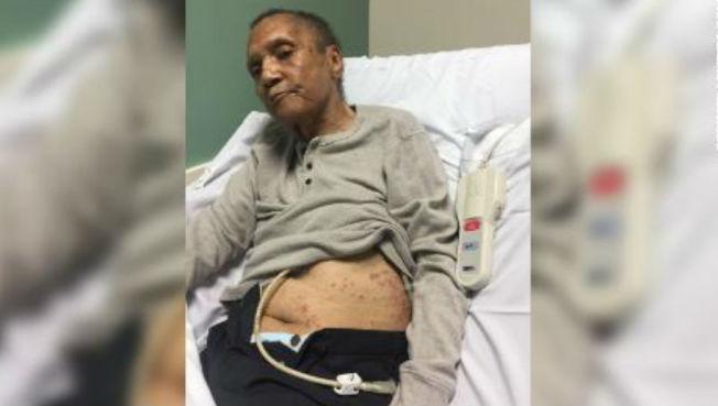 74歲的越戰退伍軍人馬拉博7日死在喬治亞州的退伍軍人事務部 (VA)療養院,身上全是被螞蟻咬傷的痕跡,使他的女兒痛不欲生,參院VA委員會主席也為之大怒。(CNN電視台截圖)