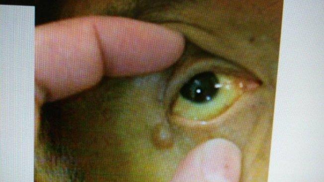 患者眼睛出現黃疸症狀,圖非當事人。(圖:台中慈濟醫院提供)