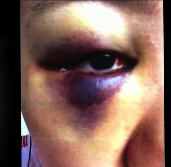 一名被害女留學生指控遭徐鋼毆打成傷。(取自取自CBS This Morning)