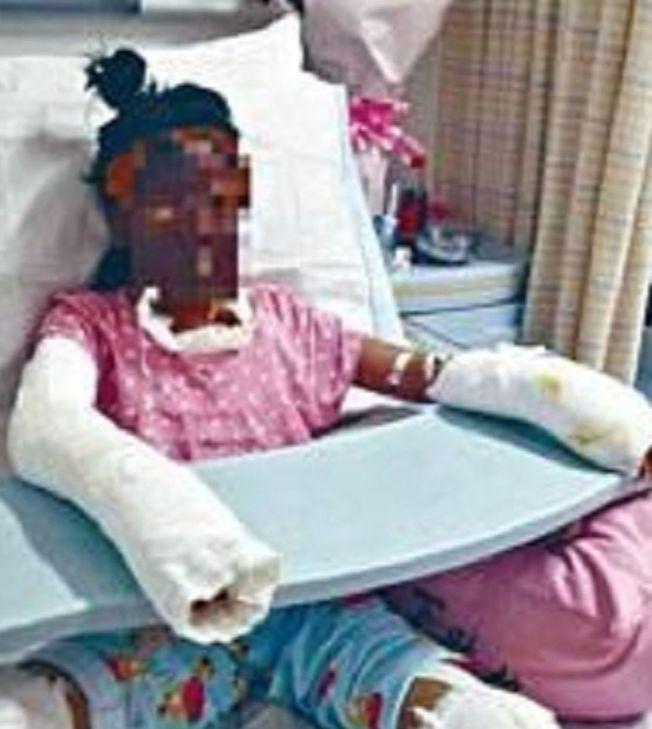 被燒傷的女孩。(取材自微博)