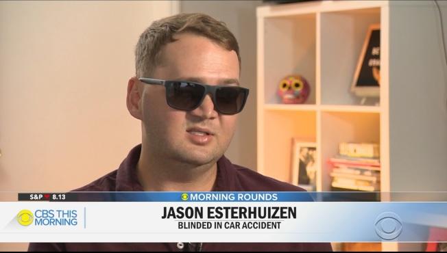 南非青年傑生.艾斯特惠正因車禍造成失明,他來美接受手術,在腦中植入晶片,如今可以分辨光明與黑暗。(CBS新聞)