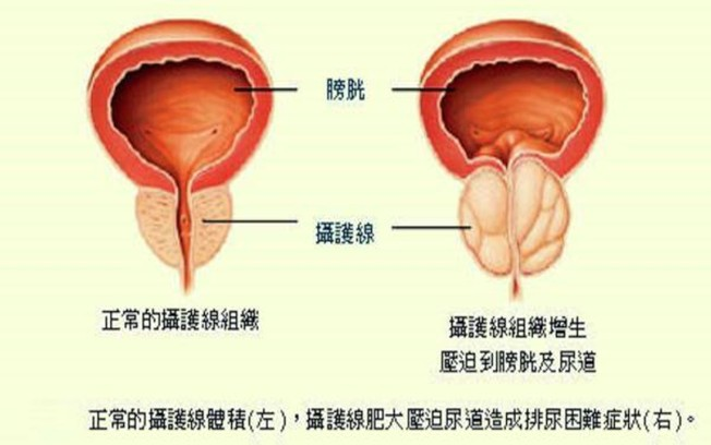 攝護腺肥大是中老年男性經常會遇到的問題。(圖:安南醫院提供)