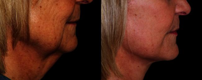 術後3週恢復期效果圖。下頜曲線和頸部皺紋得到明顯改善。