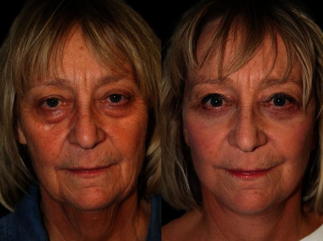 術後3週恢復期效果圖。 Cure Lift真實客人,同時接受了微創祛眼袋術。