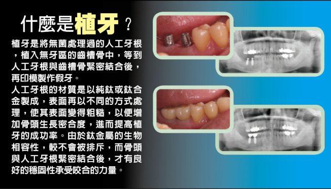 台灣醫療奇蹟/結合高科技 植牙更精準