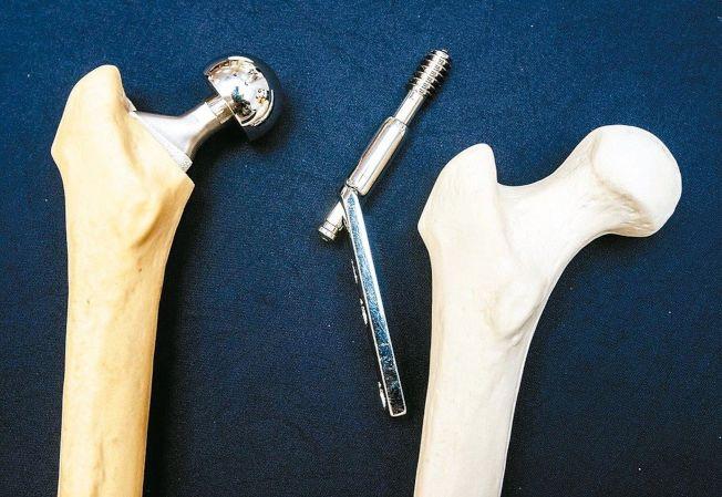 圖為人工關節(左)與傳統固定用鋼釘比較。(本報資料照片)