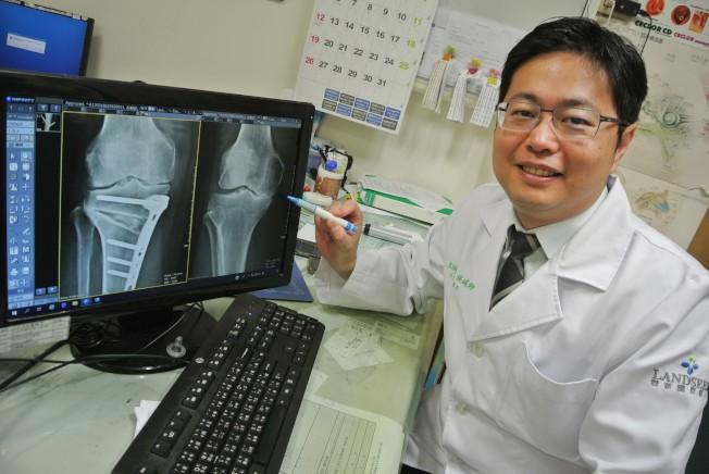 專家觀點膝蓋痛不一定要換關節考慮高位脛骨截骨手術