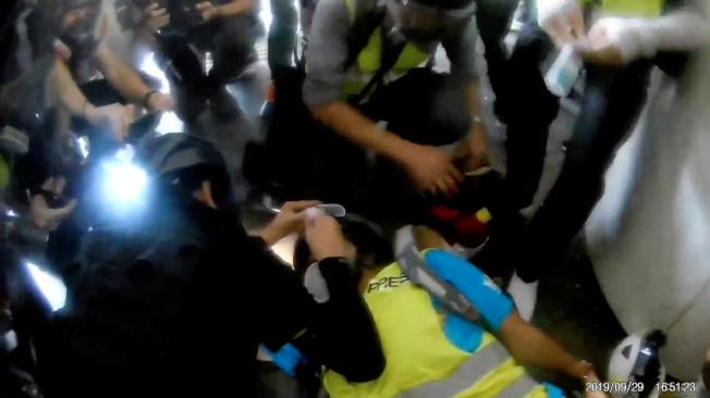 印尼女記者英達9月29日在反修例示威期間疑遭警員開槍射盲右眼,圖為她當時接受緊急救治。(路透)