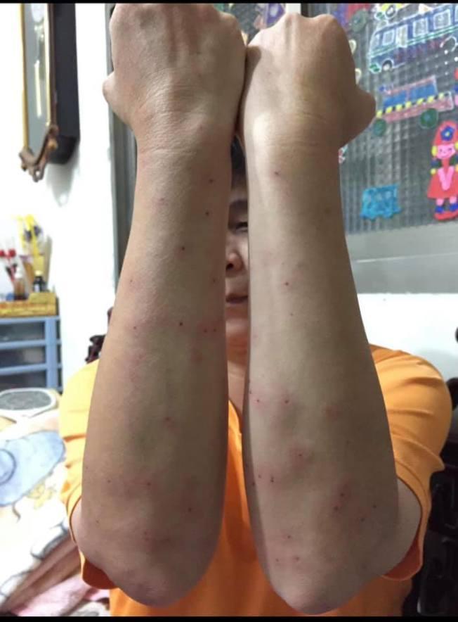 有人分享自己在公園釣魚兩小時,被小黑蚊叮咬,雙手手臂都是「紅豆冰」。(取材自臉書)