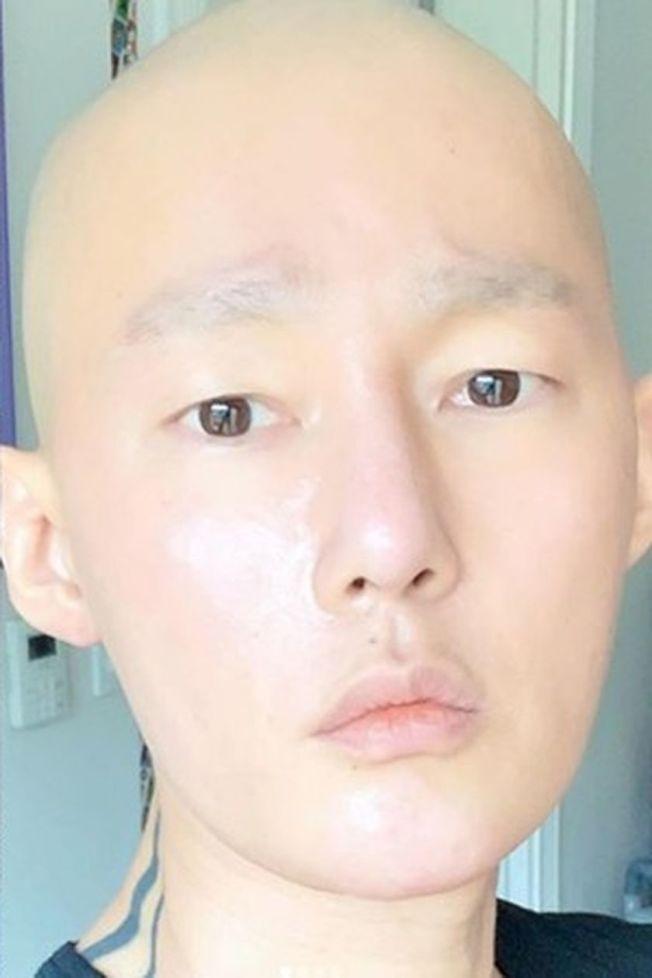許志雄2018年被診斷出惡性淋巴癌。(取材自Instagram)