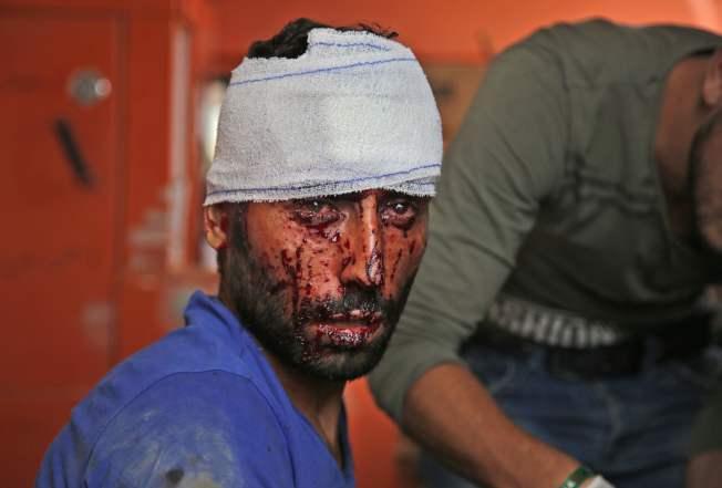 停火協議生效,在敘北的庫德族人急忙趁機逃往敘南或其他地區,免遭到土國部隊殺害。圖為敘北一名受傷的庫德族難民。(Getty Images)