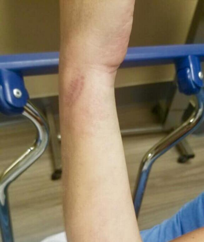 奧特里的手臂被毛毛蟲叮咬後紅腫。(取自臉書)