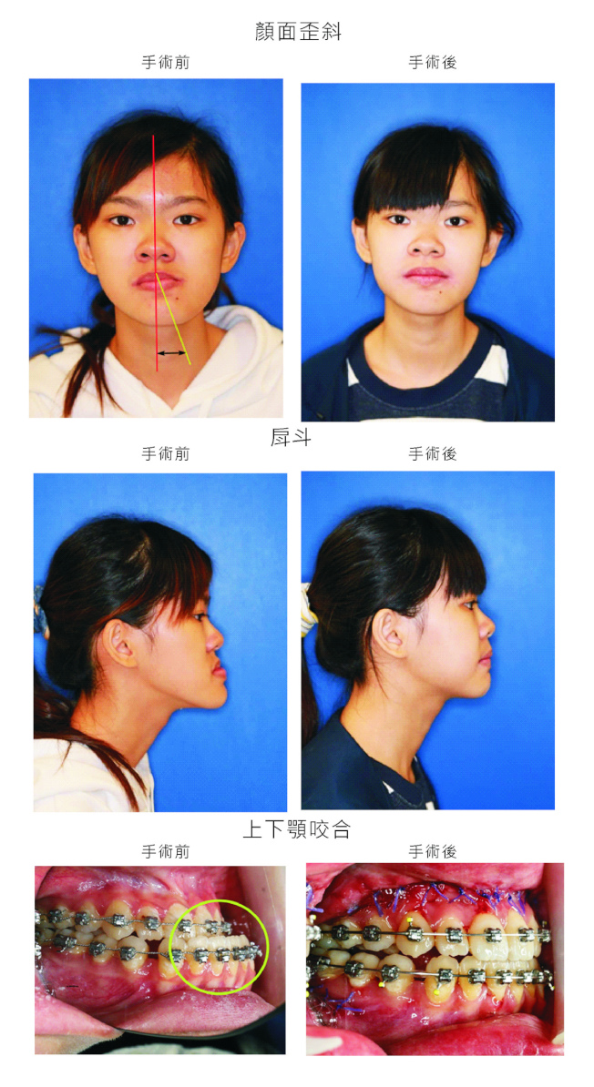 彰化縣18歲女孩小靜嚴重戽斗,進行「正顎手術」後,現在終於能拿下口罩,也能好好吃一碗麵了。 (圖:彰基提供)