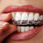 牙齒矯正 不再是青少年專利