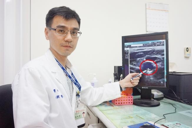 新竹馬偕醫院神經內科醫師楊敬譽表示,紅色圓圈處為病患頸動脈粥樣硬化性斑塊,如置之不理可能引起缺血性腦中風。圖/新竹馬偕醫院提供