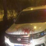 滴滴5星司機刺傷乘客 揚言「我舅舅是公安局長」