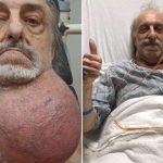 81歲老翁長「足球大小」下巴瘤 醫生嚇壞怕他窒息亡