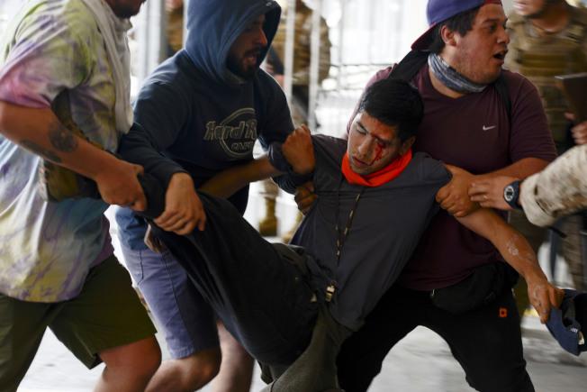 智利警方發射橡皮子彈,造成許多抗議民眾眼部受傷。(美聯社)