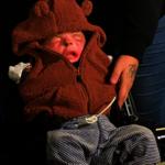 嬰兒出生缺皮膚 自體移植成效佳