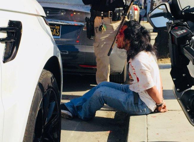 一名男子頭破血流被銬坐路邊。(推特照片)