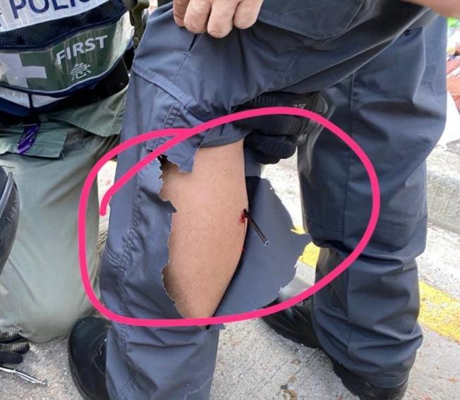 下午約2時,傳媒聯絡隊一名警長到達柯士甸道及漆咸道南位置工作期間,左小腿中箭。(取材自臉書)