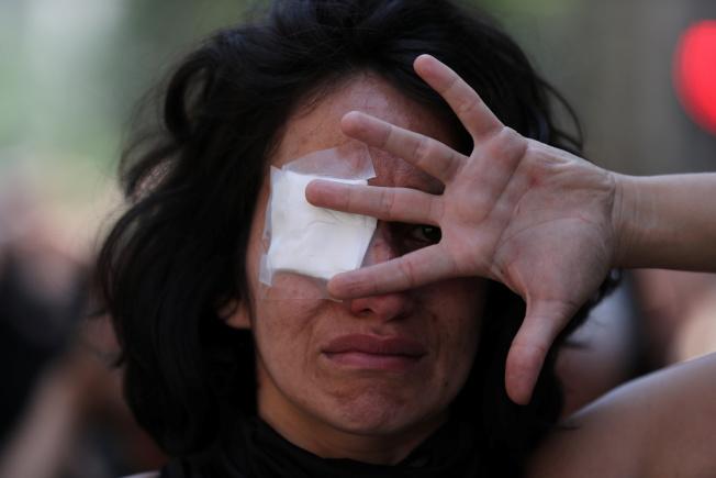人權團體和智利醫學院認為,在智利抗議活動中眼睛受傷的人,要比在法國的「黃背心」和近來香港抗爭中的人還要多。(路透)