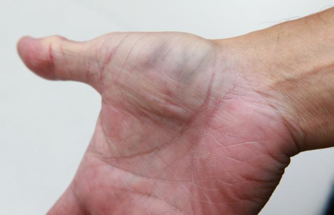 網路流傳手上的青筋是血管硬化信號,像大拇指側爆青筋反映心肺問題、大拇指根部反映冠心病風險,但心臟科醫師澄清,上述都是無稽之談,血流變大才使手部血管較明顯突出,並非因為心血管疾病。記者陳柏亨/攝影