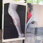 黑白影像為噤聲受害者說話 義大利展出家暴X光片
