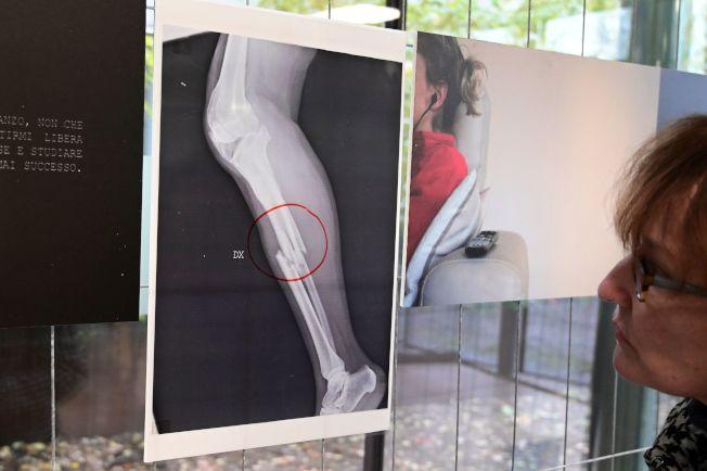 義大利米蘭一間醫院舉行「家暴受害婦女X光片展」。(Getty Images)