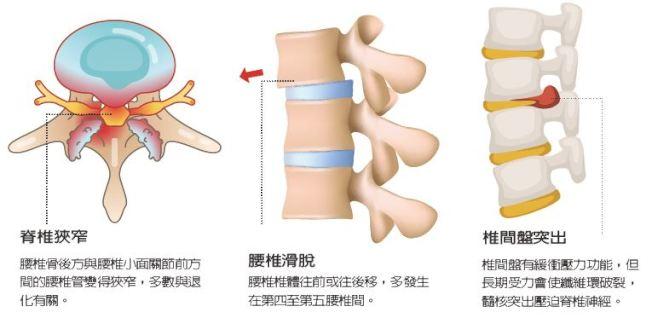 腰痛常見原因為腰椎滑脫、脊椎狹窄以及椎間盤突出。(取材自元氣周報)