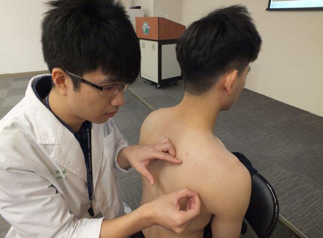 醫師楊潤(左)說明,陳姓大學生(右)勤練重訓,透過針灸激痛點治療兼保養,讓運動生涯健康長久。(記者趙容萱/攝影)