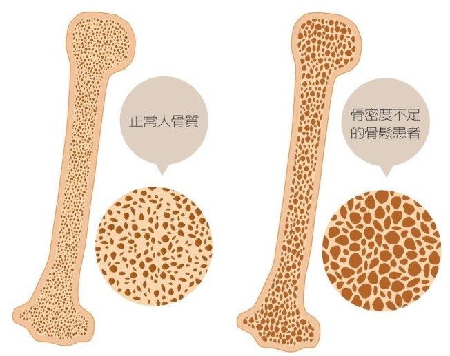 骨質疏鬆症被美國列為第2大流行性疾病,台灣則是65歲以上老人第四大常見的慢性病,台灣快速邁入老化社會,對骨鬆的認知,仍侷限認為是「老化」必經的疾病。根據統計,台灣老年人口比例在2020年及2030年分別將提升至16.1%和24.5%,預估在2025年將達到500萬人,「保密防跌」存骨本將是當務之急。 圖/123RF