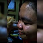少女「貓舔臉」治青春痘 男子仿效…送命!