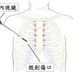 心臟手術改「微創」 縮短病患恢復期