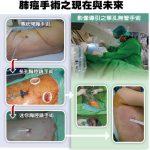 台灣醫療奇蹟/無管胸腔鏡手術 造福肺癌患者