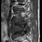 後腰痛 竟是細菌「啃食」椎間盤